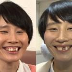 ハリセンボン箕輪はるか、前歯の治療を決意 黒い歯を白くする