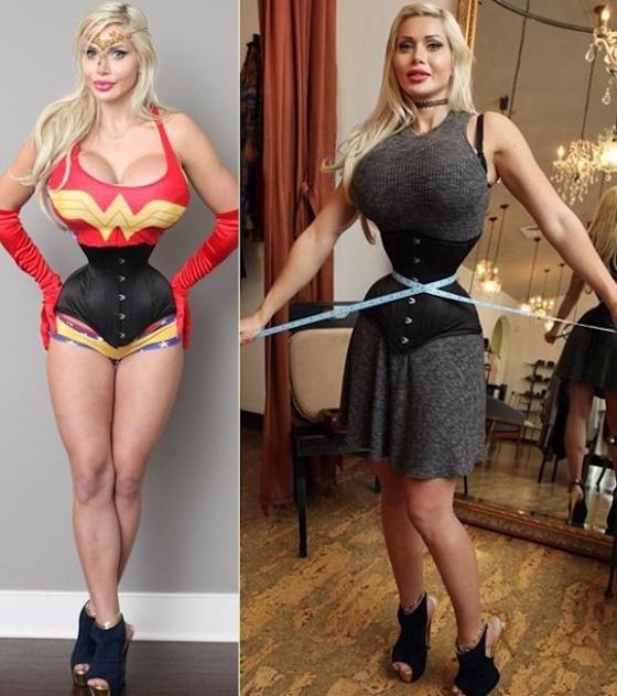 【画像】女性がアニメキャラになるため肋骨6本抜く全身整形 ワンピースのナミそっくりの極細ウェストに