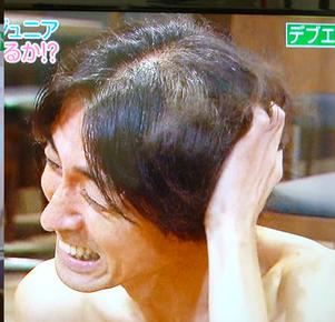 【画像】ナイナイ矢部浩之、ハゲる