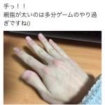 【画像】ツイカスさんの手、キモすぎるwwwww