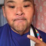 【画像】安田大サーカスのヒロが198キロ→103キロに激痩せして顔の皮が垂れる