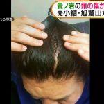 【画像】貴ノ岩の頭の傷か 元小結・旭鷲山が写真公開