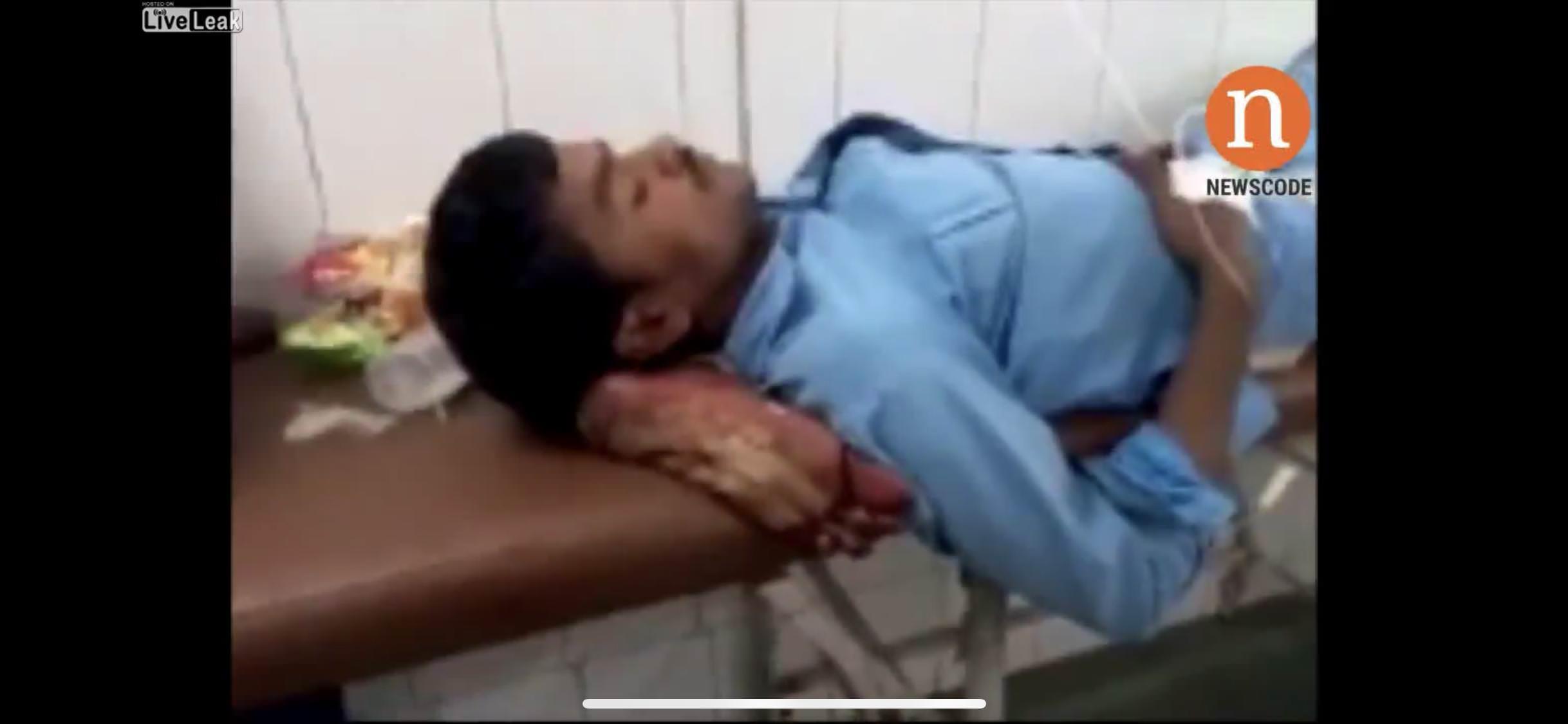 インド人医師「枕足りないなぁ いま切断した足でいいか」→定職処分