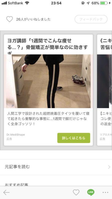【画像】「は?!流石に加工しすぎやろ!!!って思ったらズボンの柄だった」