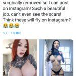 【画像】巨乳美女、乳首を切除しネットにおっぱい画像を上げられるようになる