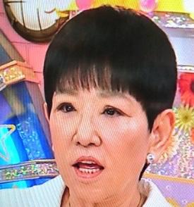 【画像】和田アキ子、眼瞼下垂手術結果に納得いかず「ものすごい変な目になった」