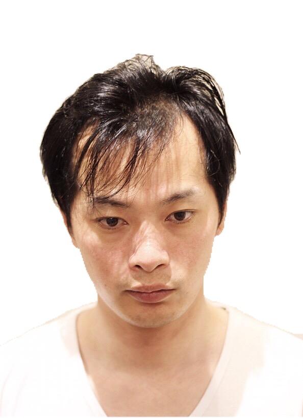 【画像】最近の若ハゲ、美容院で髪を整えてごまかし成功で笑顔にww