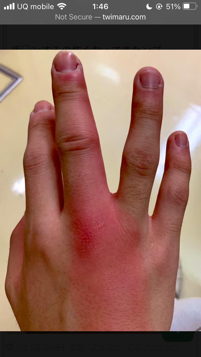 【画像】風俗嬢に手マンした男、指から性病に感染するwww